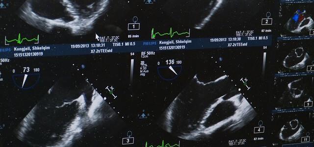 koerperfett ultraschall