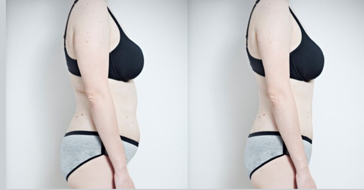 Diät, um Fett aus dem Körper zu entfernen
